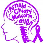 Chiari malformation type 1 treatment – Everything you need to know about